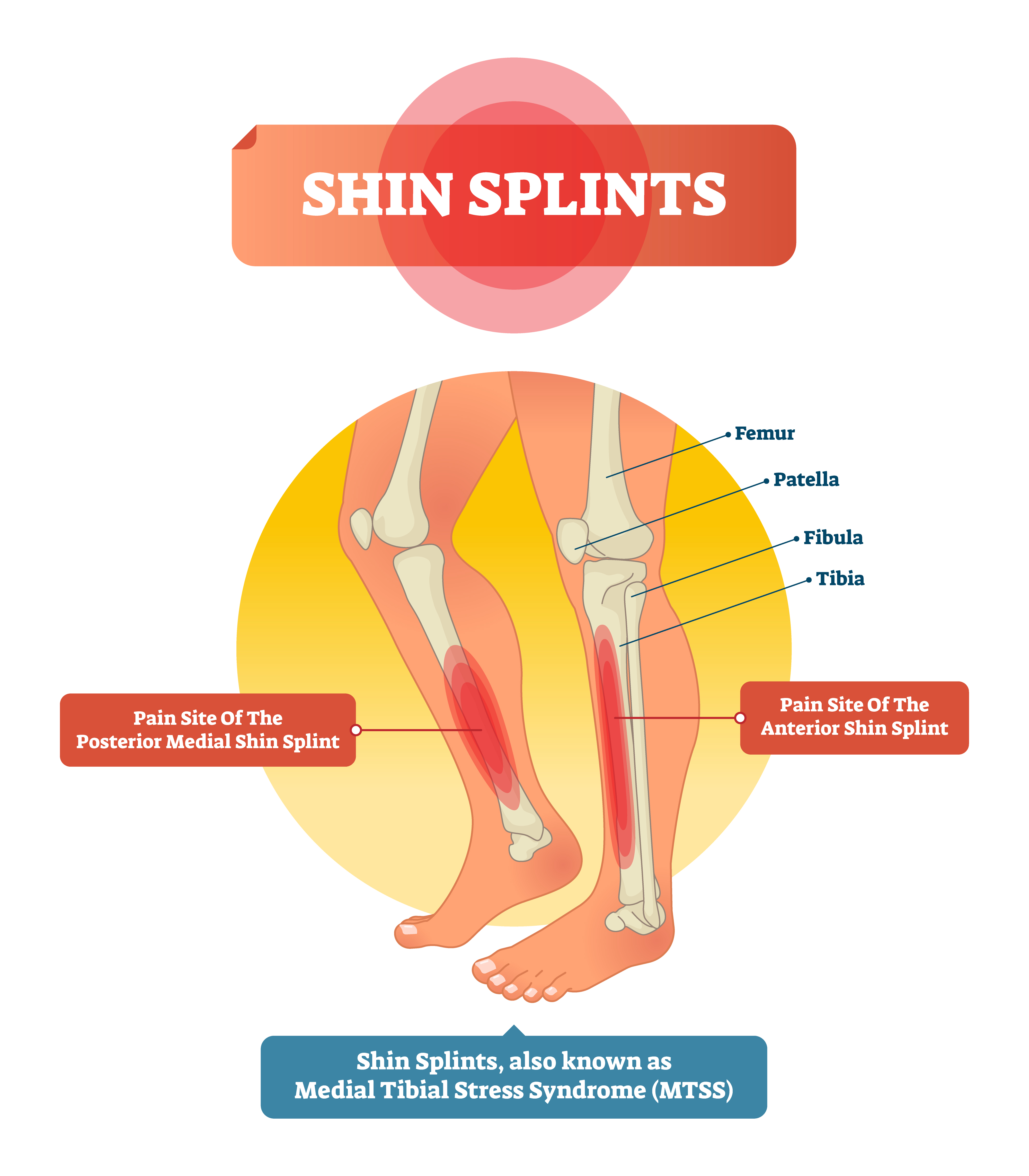 Medial Tibial Stress Syndrome Shin Splints Best Solutions